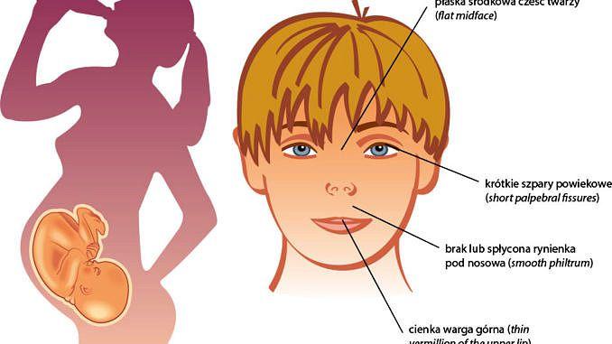 Rysunek - pijąca kobieta w ciąży i twarz dziecka z cechami FASD